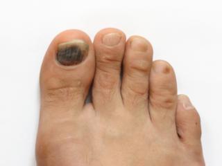 Bruised or black toenail