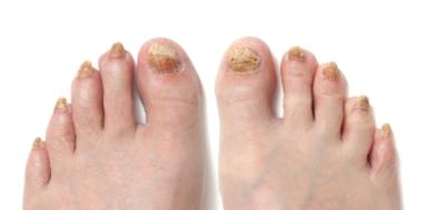 How to Cure Nail Fungus once and for all