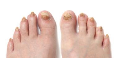 Ingrown nail - Wikipedia